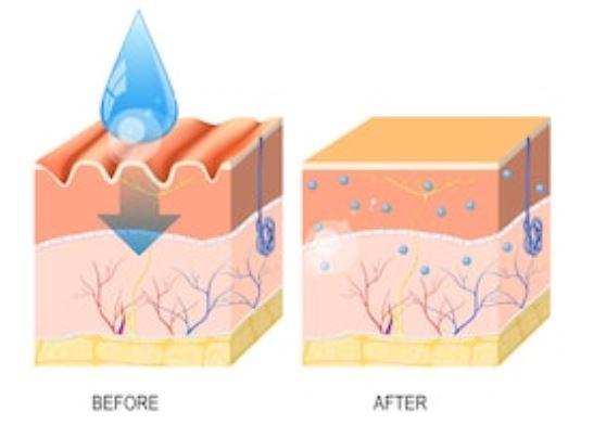 ácido hialurónico en la piel