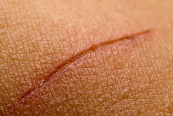 ácido hialurónico. para heridas