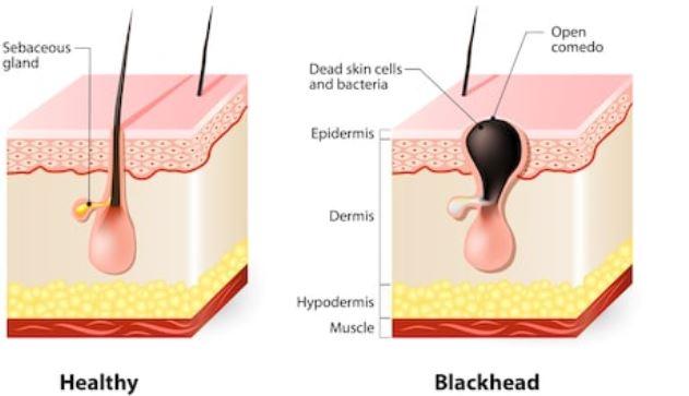 fases del acné