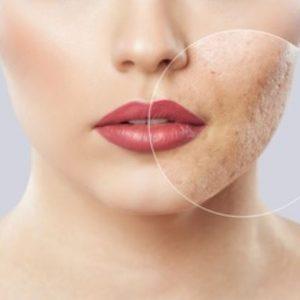 Cremas cicatrizantes para el acné