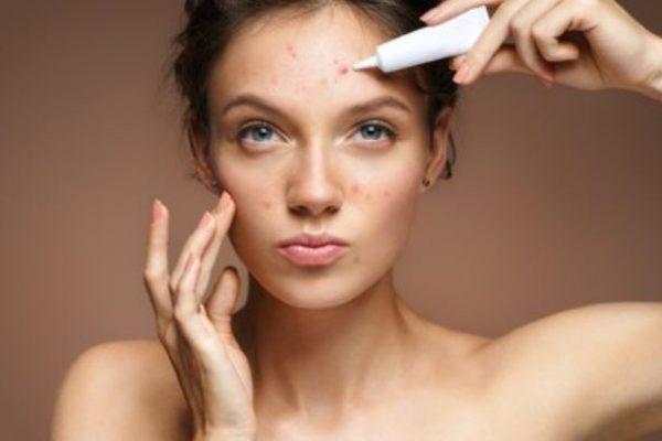 trucos para el acné