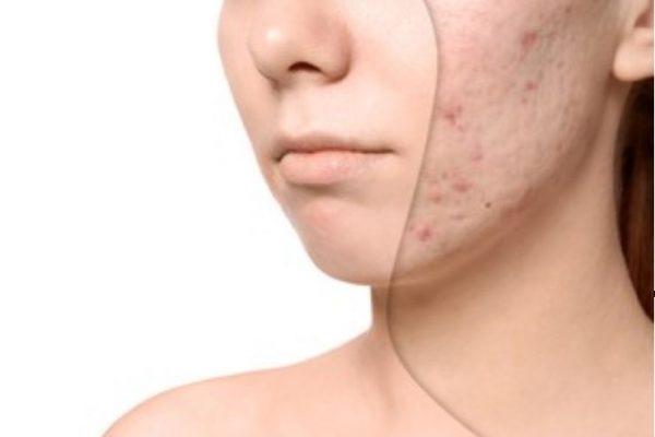 ingredientes para mejorar las cicatrices del acné