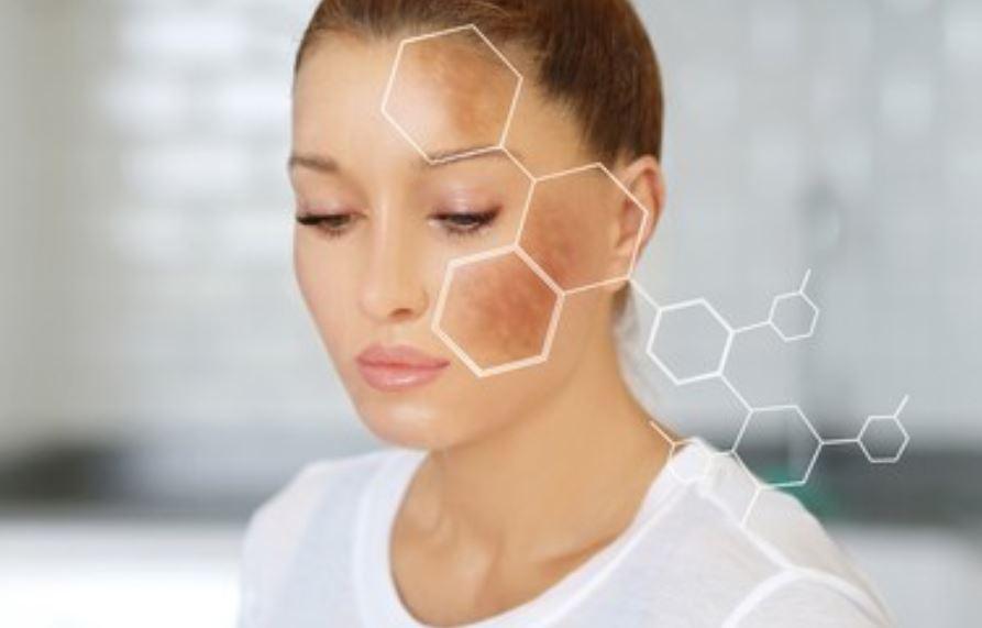 ¿Qué es la hiperpigmentación y cómo se puede eliminar?