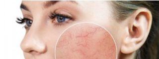 Mejores limpiadores para piel con rosácea